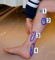 1:が足炎 2:テニスレッグ 3:シンスプリント 4:アキレス腱炎